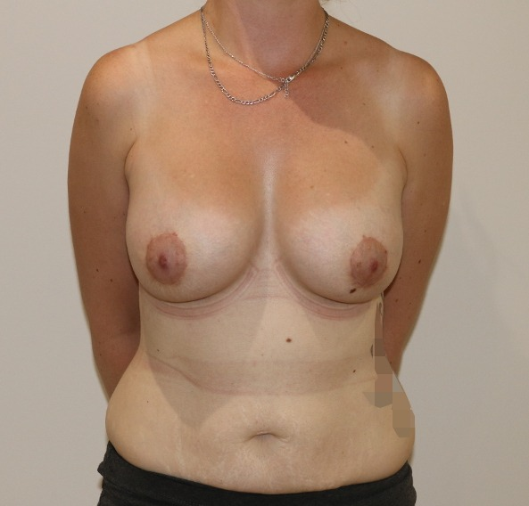 breast enlargement after picture ap