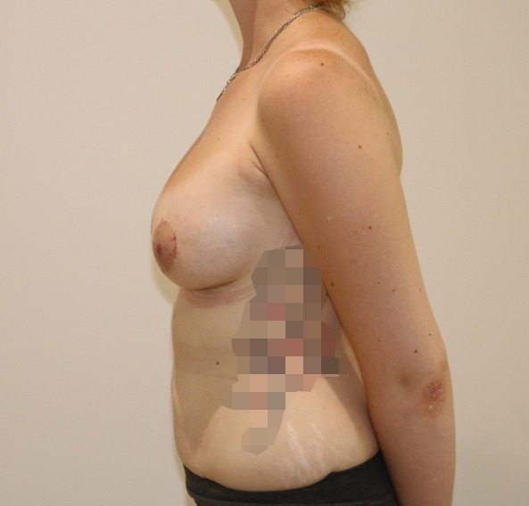 breast enlargement after picture left lateral