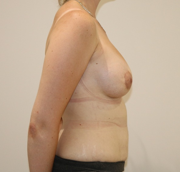 breast enlargement after picture right lateral