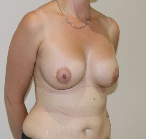 breast enlargement after picture right oblique