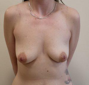breast enlargement before picture ap