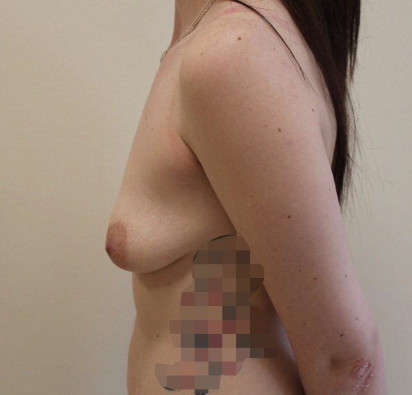 breast enlargement before picture left lateral