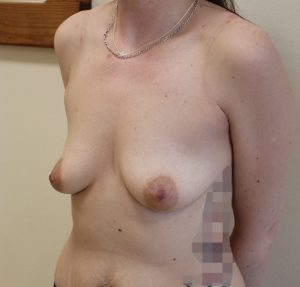 breast enlargement before picture left oblique