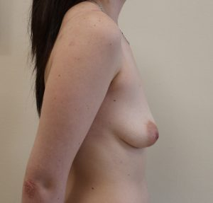 breast enlargement before picture right lateral