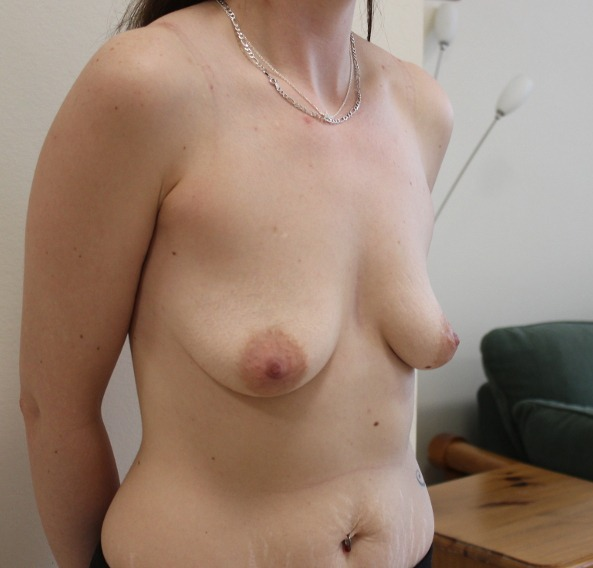 breast enlargement before picture right oblique