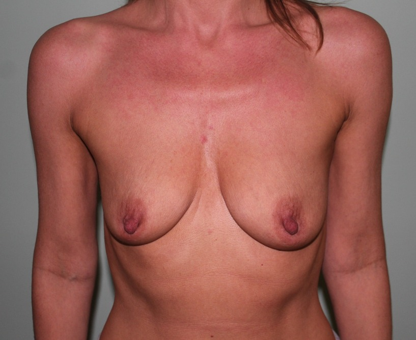 breast enlargement before picture ap