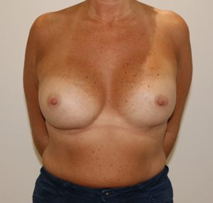 capsular contracture breast implant surgery after ap view