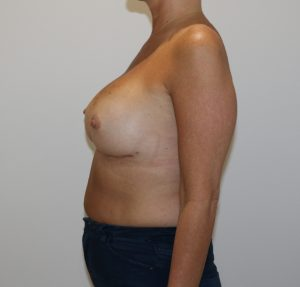 capsular contracture breast implant surgery after left lateral view