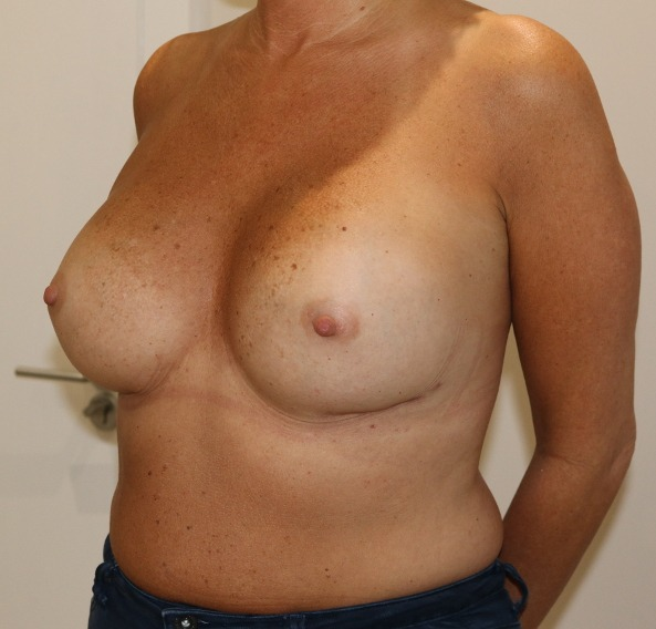 capsular contracture breast implant surgery after left oblique view