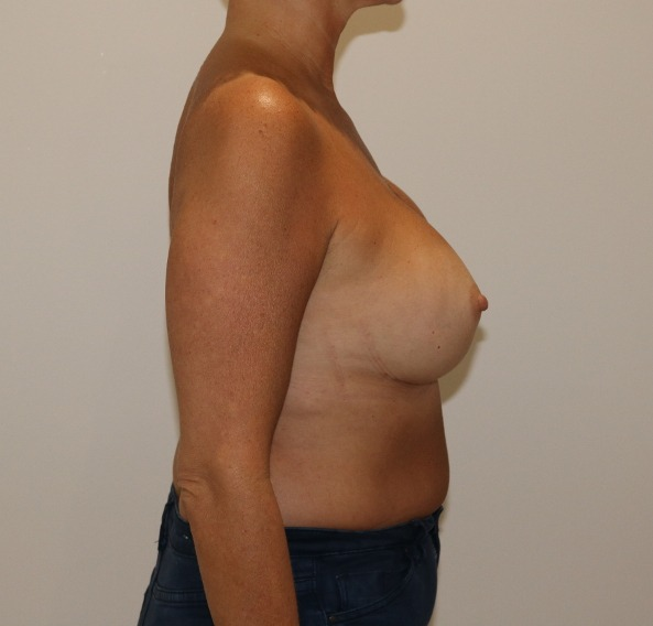 capsular contracture breast implant surgery after right lateral view