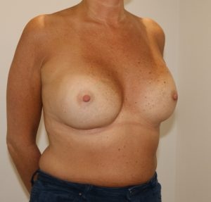 capsular contracture breast implant surgery after right oblique view