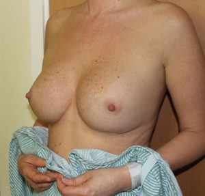 capsular contracture breast implant surgery before left oblique view