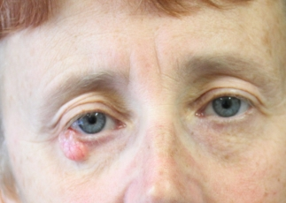 lower eyelid surgery before picture ap