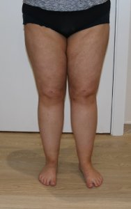 thigh leg liposuction after picture ap view