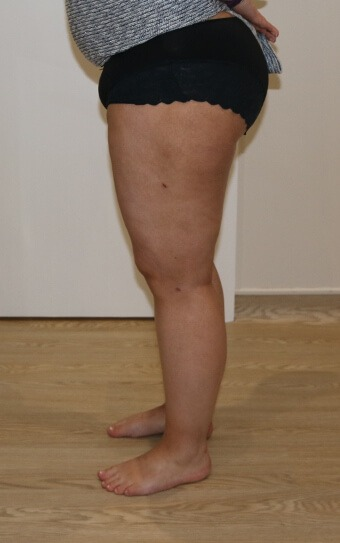 thigh leg liposuction after picture left lateral view