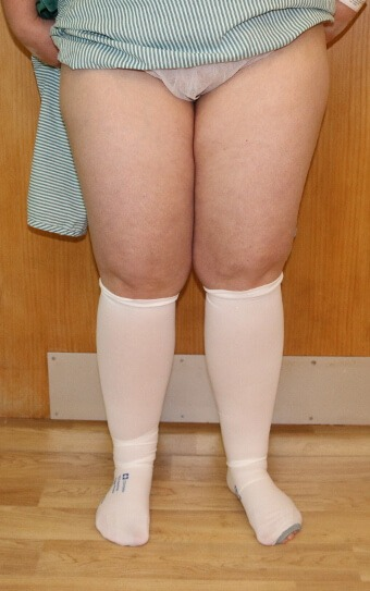 thigh leg liposuction before picture ap view