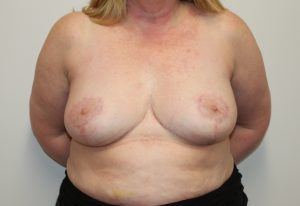 breast reduction after picture ap