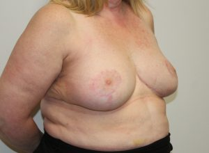 breast reduction after picture right oblique