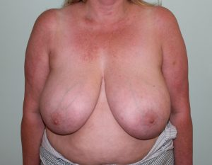 breast reduction before picture ap