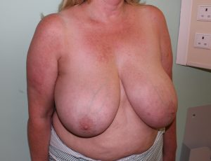 breast reduction before picture right oblique