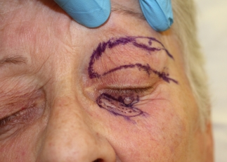 hemi-tripier-flap-reconstruction-of-lower-eyelid