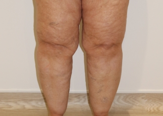 lipoedema lower leg liposuction before pictures ap