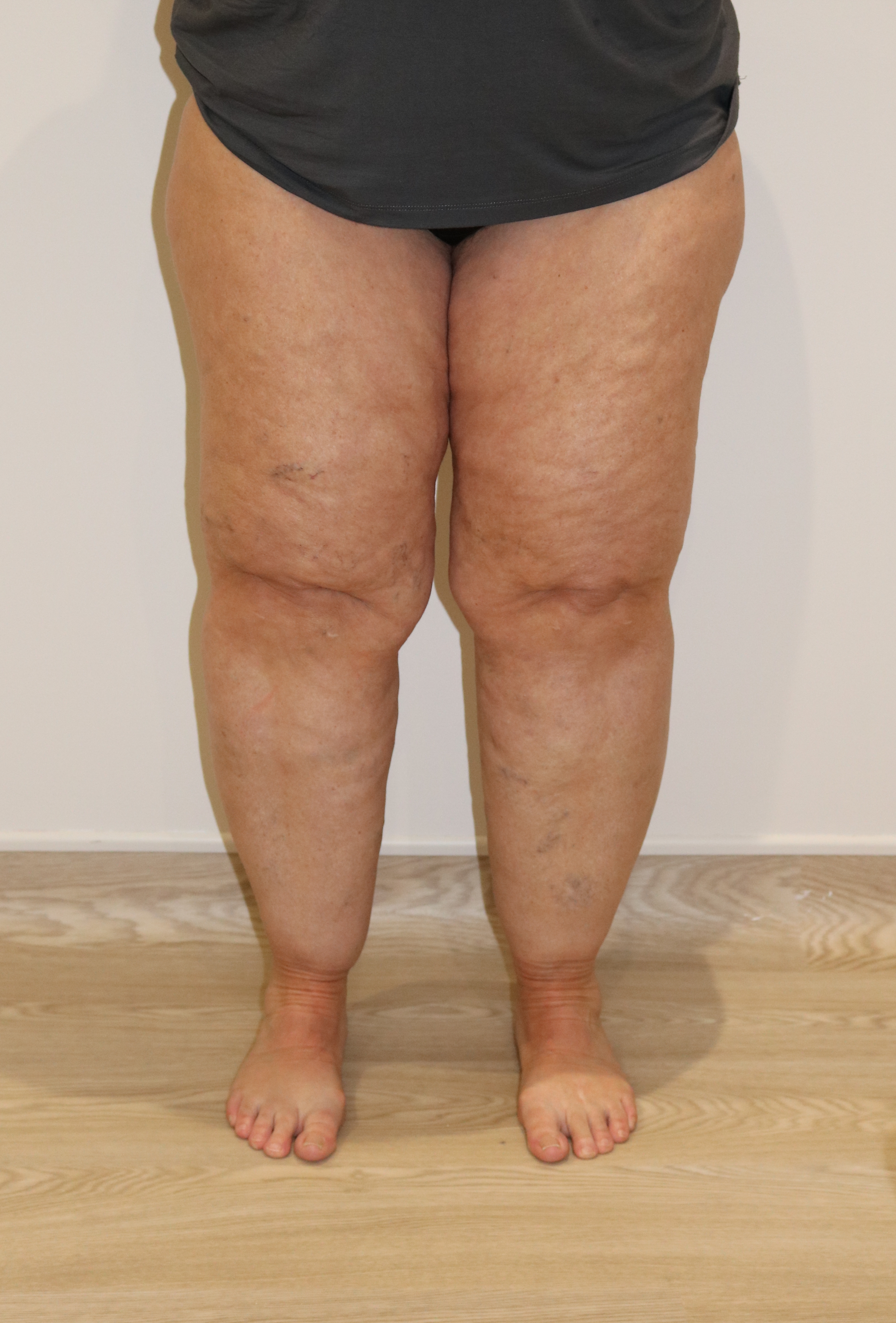 Liposuction (Liposculpture) | GloboMD