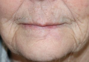 lower lip reconstruction