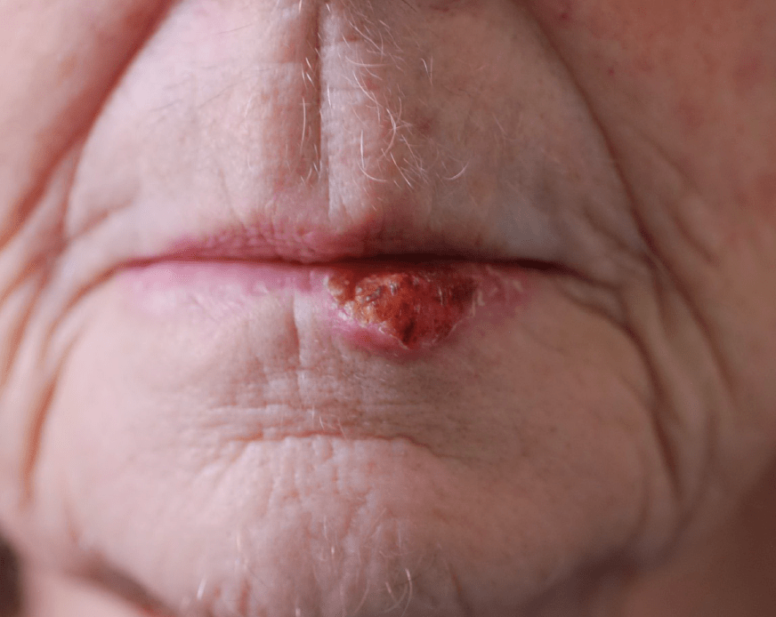 lower lip reconstruction before