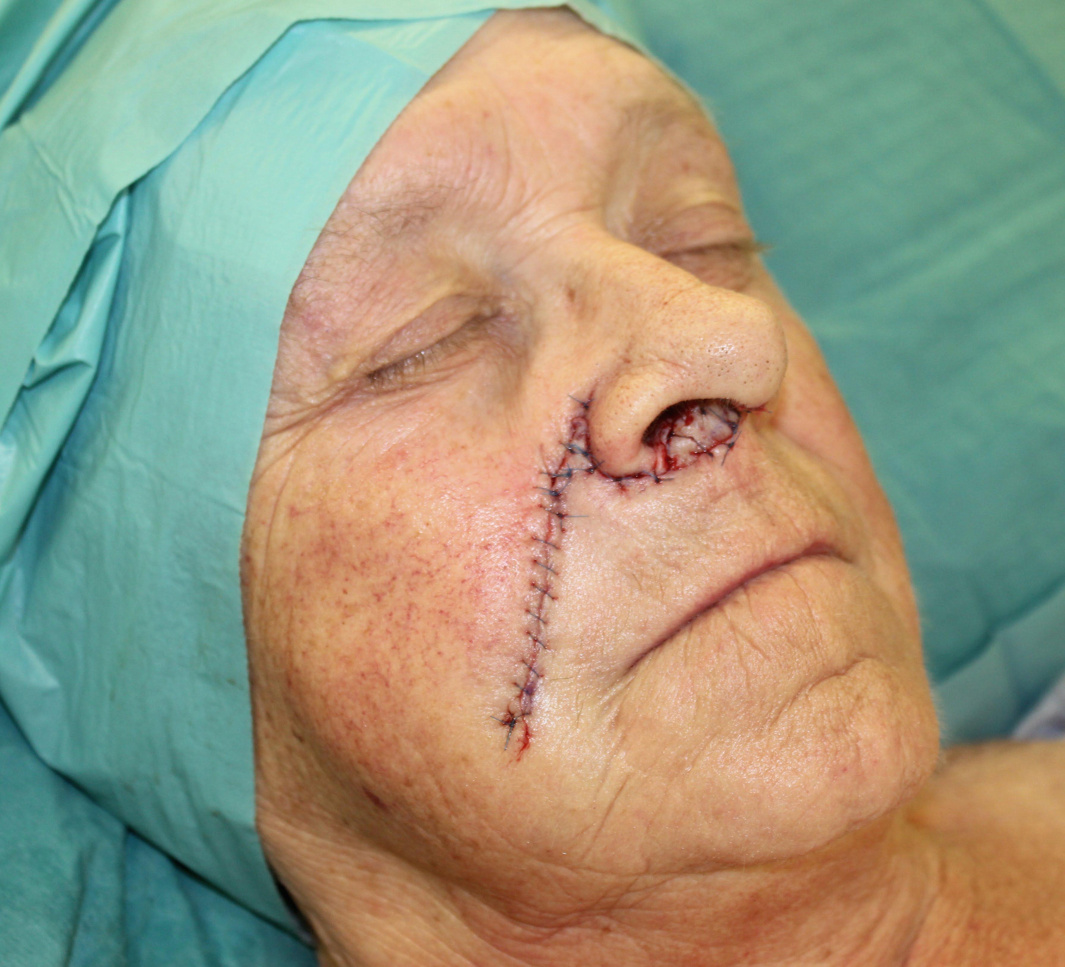Facial flap surgery