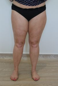 thigh leg liposuction after picture ap