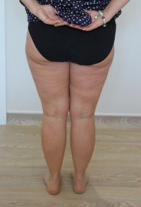 thigh leg liposuction after picture posterior