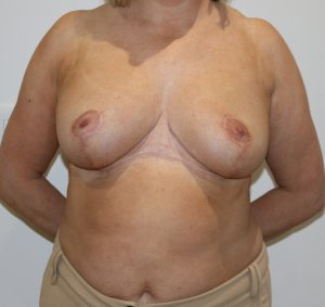 breast reduction after picture ap view