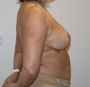 breast reduction after picture right lateral view