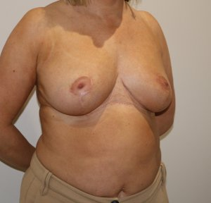 breast reduction after picture right oblique view