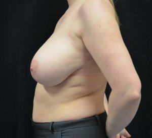 breast reduction before picture left lateral view