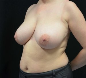 breast reduction before picture left oblique view