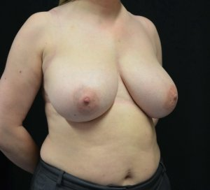 breast reduction before picture right oblique view
