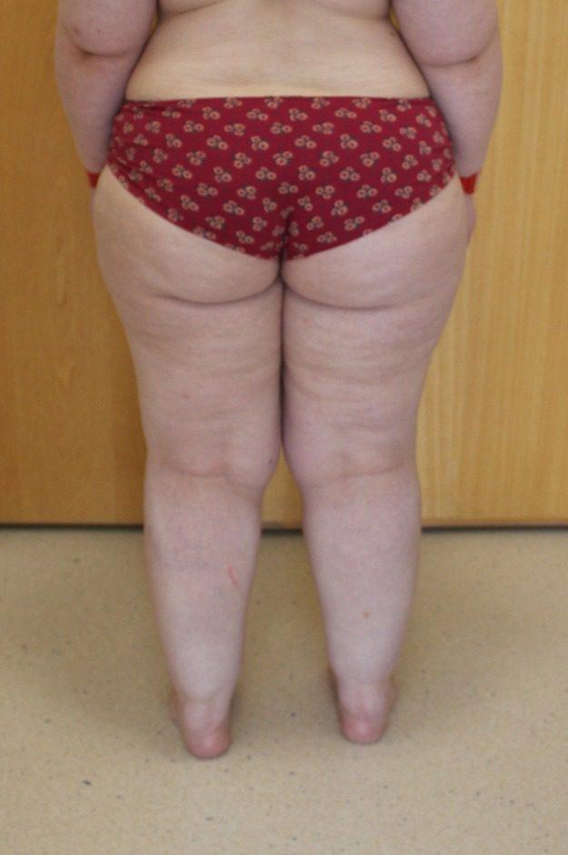 lipoedema-liposuction-before-posterior-thighs - The Karri Clinic