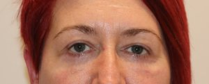 lower eyelid surgery after picture ap view