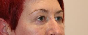 lower eyelid surgery after picture right oblique view