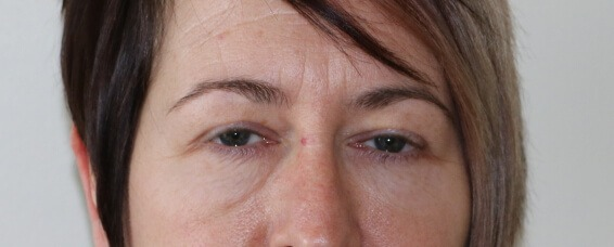 lower eyelid surgery before picture ap view
