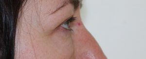 lower eyelid surgery before picture right lateral view