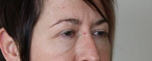 lower eyelid surgery before picture right oblique view
