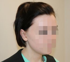 ear correction after picture right oblique view
