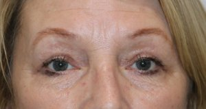 upper eyelid surgery after picture AP view