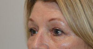 upper eyelid surgery after picture left oblique view