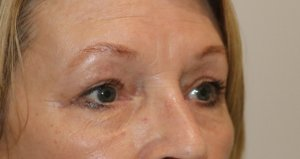 upper eyelid surgery after picture right oblique view
