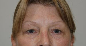 upper eyelid surgery before picture ap view