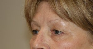 upper eyelid surgery before picture left oblique view